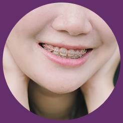 Servicio de Ortodoncia CDMX